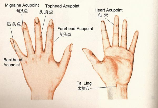 Headache Hand Acupuncture Point Diagram