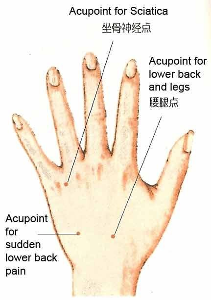 Some Acupuncture Point On Hand Diagram