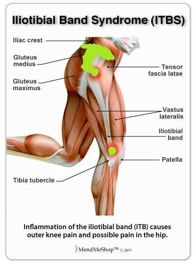 Iliotibial Band Syndrome Diagram