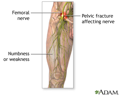 Pelvic Fracture Affecting Nerve Diagram