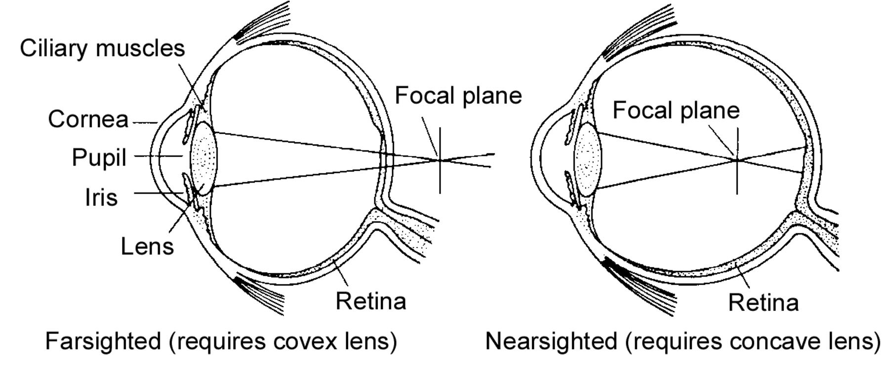 Faresighted And Nearsighted Of Eye Diagram