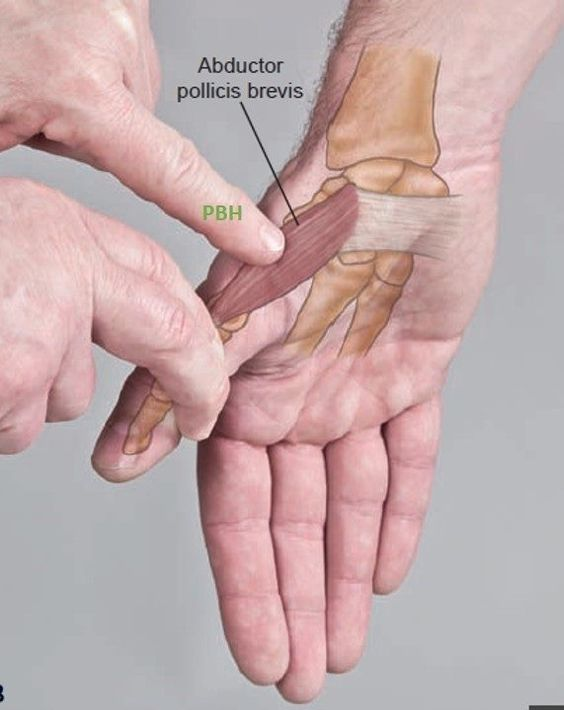 Abductor Pollicis Brevis Anatomical Landmark