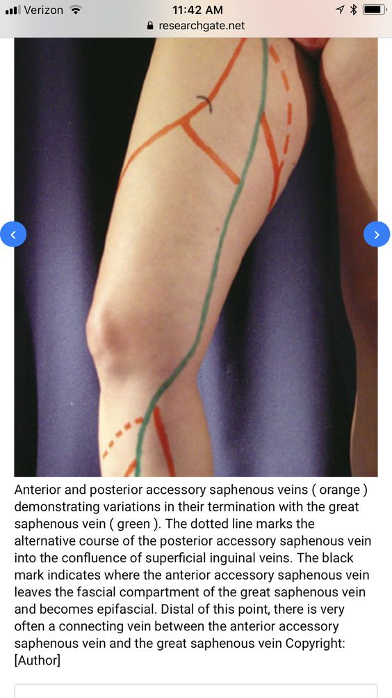Anterior And Posterior Accessory Saphenous Veins Diagram
