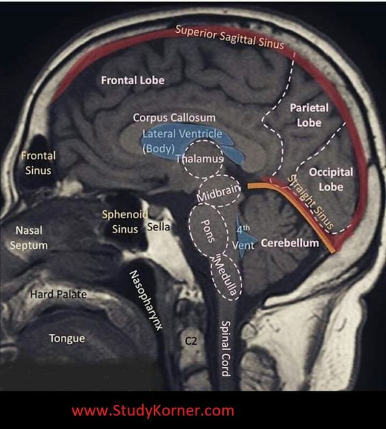 Brain Mri Sectional View In Detailed Labelled