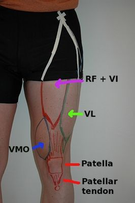 Lower Extremity Proximal Anatomical Landmark