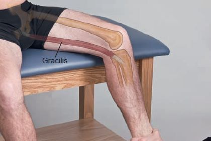 Gracilis Anatomical Landmark
