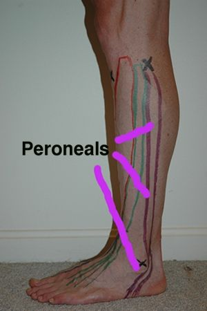 Peroneals Anatomical Landmark