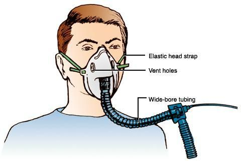 Breathing Mask With Ventilator