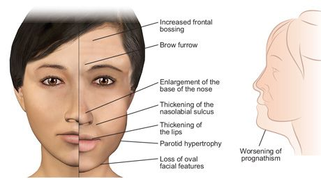 Facial Changes Of Acromegaly Diagram