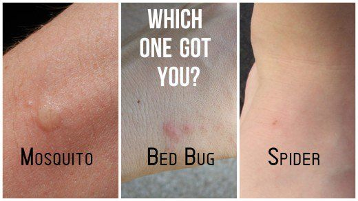 Mosquito, Bed Bug, Spider Bites Difference Diagram
