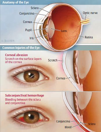 Common Injuries Of The Eye Diagram