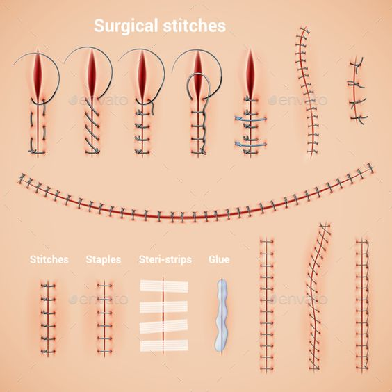 Surgical Stitches Types