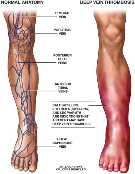 Normal Lower Extremity Anatomy And Deep Vein Thrombosis Diagram
