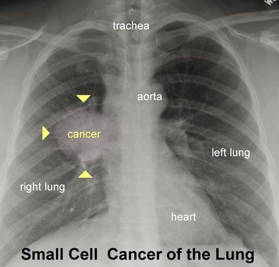 Small Cell Cancer Of The Lung X-ray Diagram