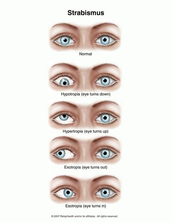 Different Types Of Strabismus Diagram