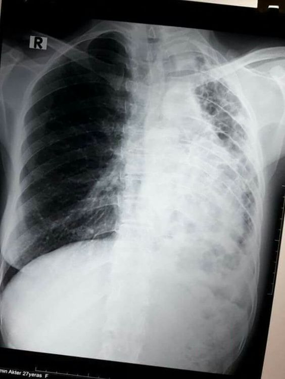 Left Lung Fibrosis With Shifted Mediastinum On X-ray