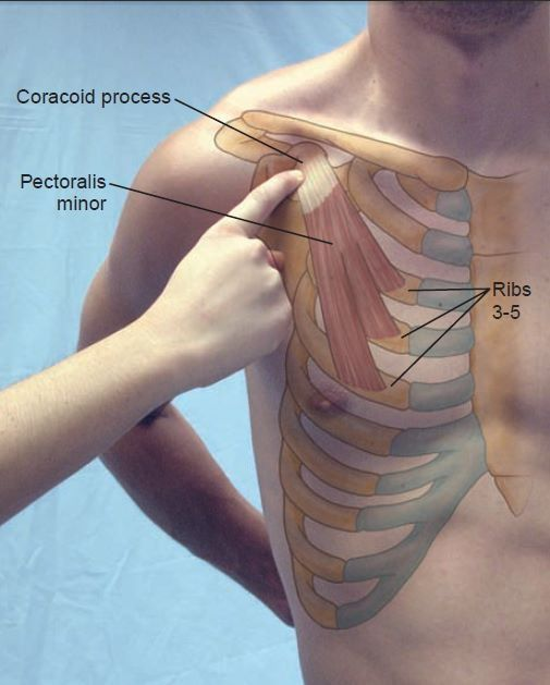 Coracoid Process, Pectoralis Minor, Ribs 3-5 Landmark