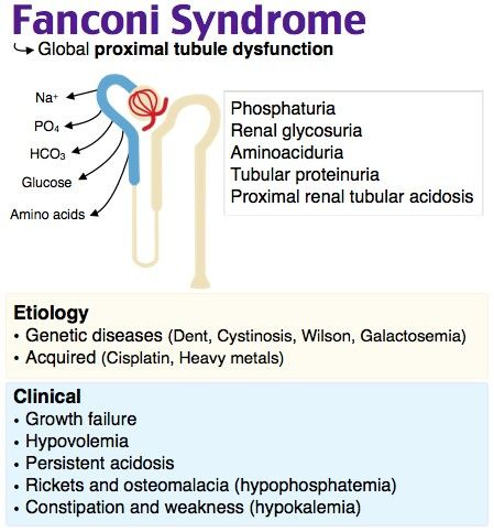 Fanconi Syndrome Diagram