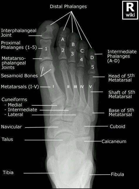 Foot X-ray Superior View In Detail