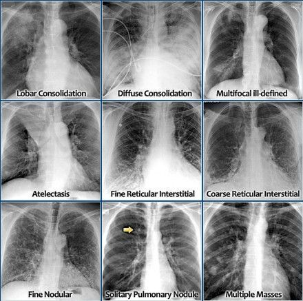 Chest X-ray - Lung Disease Four-pattern Approach