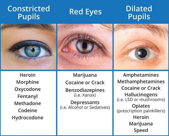 Pupil And Eye Symptoms And Related Diseases Diagram
