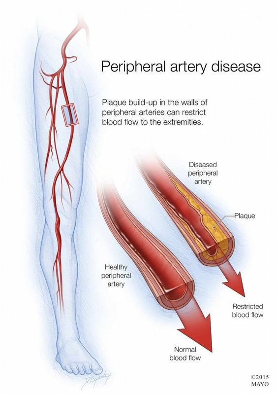 Peripheral Artery Disease Anatomy