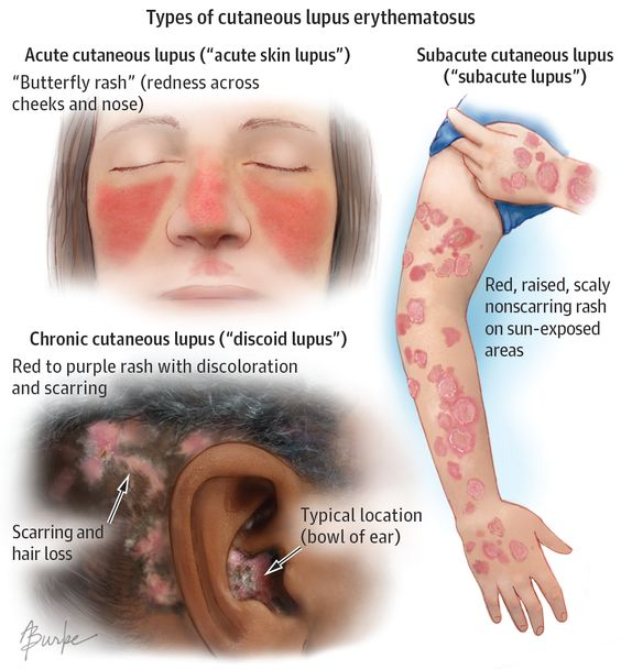 Types Of Cutaneous Lupus Erythematosus Diagram