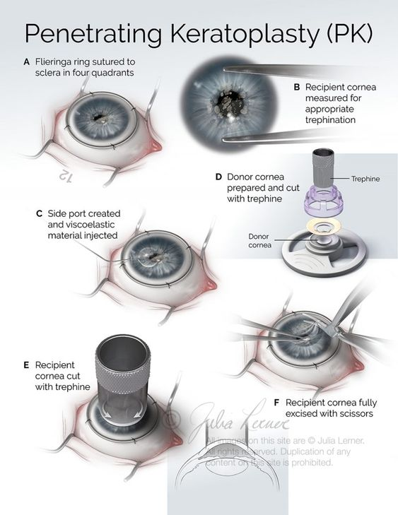 Penetrating Keratoplasty Diagram