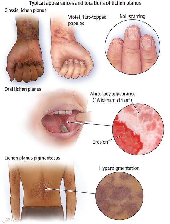 Typical Appearances And Location Of Lichen Planus Diagram
