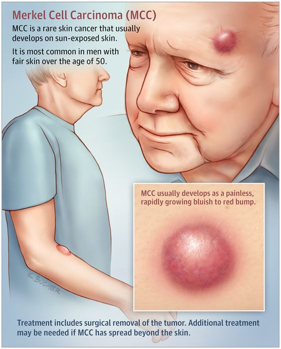 Merkel Cell Carcinoma Mcc Diagram