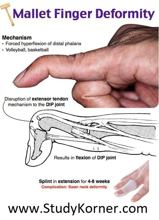 Mallet Finger Deformity Diagram