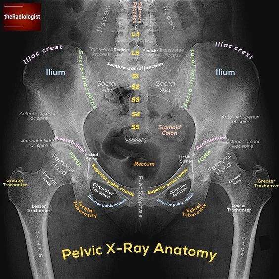 Pelvic X-ray Anatomy In Detail