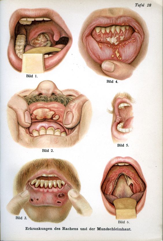 Diseases Of The Throat And Mouth