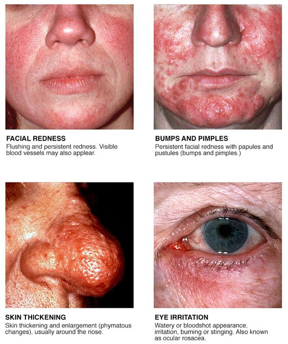 Rosacea Symptoms Diagram