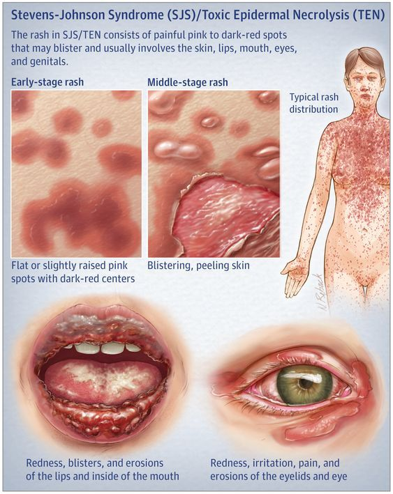 Stevens Johnson Syndrome Sjs Toxic Epidermal Necrolysis Diagram