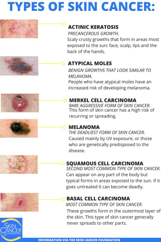 Types Of Skin Cancer Diagram
