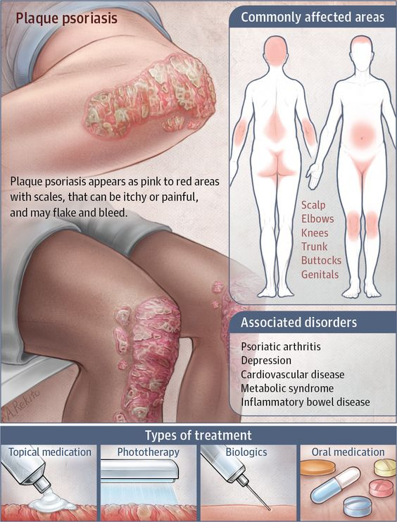 Plaque Psoriasis Diagram