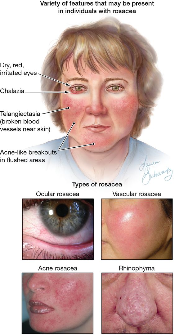 Face Rosacea And Different Types Of Rosacea Diagram