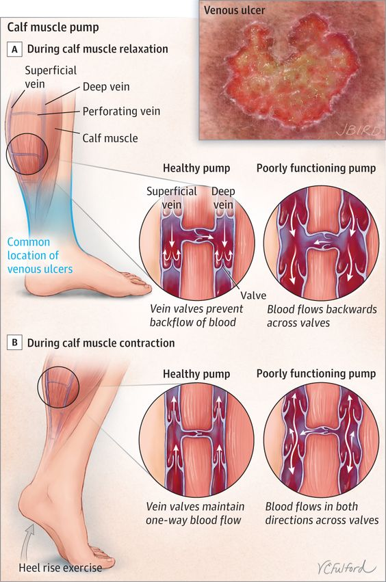 Venous Ulcers Of The Leg