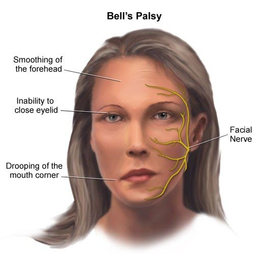 Bell's Palsy Chart