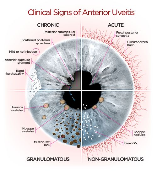 Clinical Sign Of Anterior Uveitis Chart
