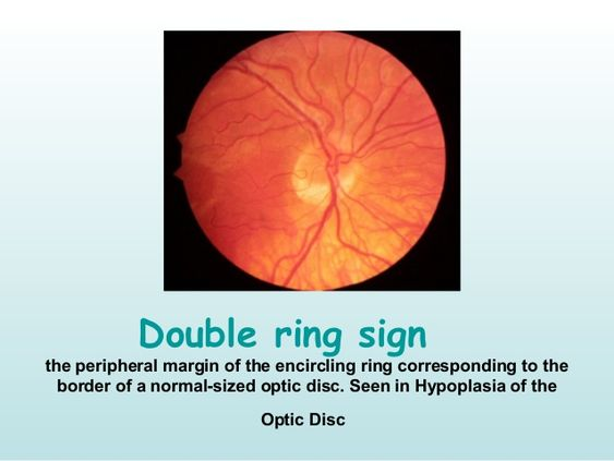 Double Ring Sign Chart