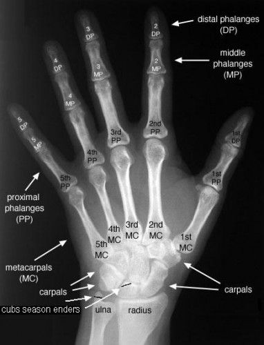 Hand X-ray Gros View
