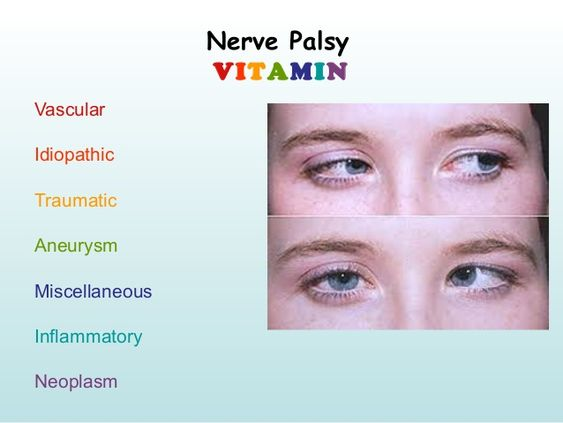 Nerve Palsy Diagram