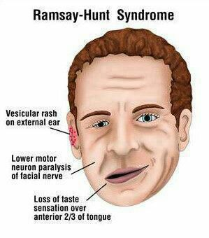 Ramsay-hunt Syndrome
