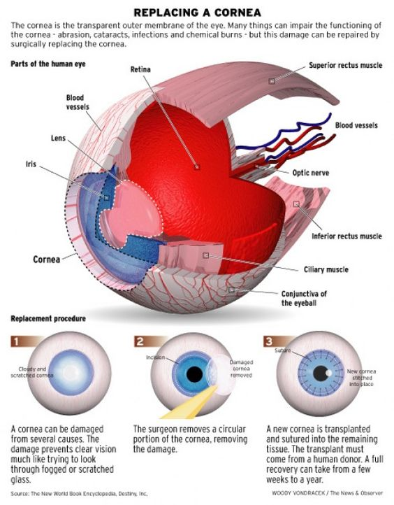 Replicing A Cornea Diagram