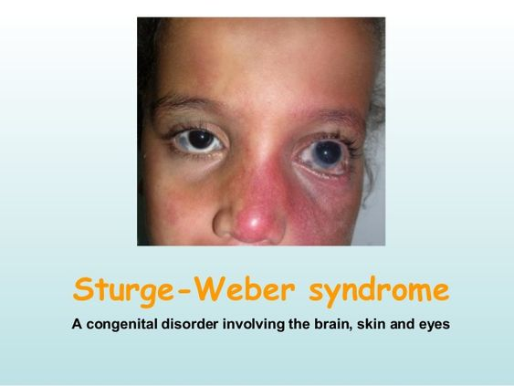 Sturge Weber Syndrome Diagram