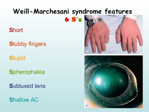 Weill – Marchesani Syndrome Features Diagram