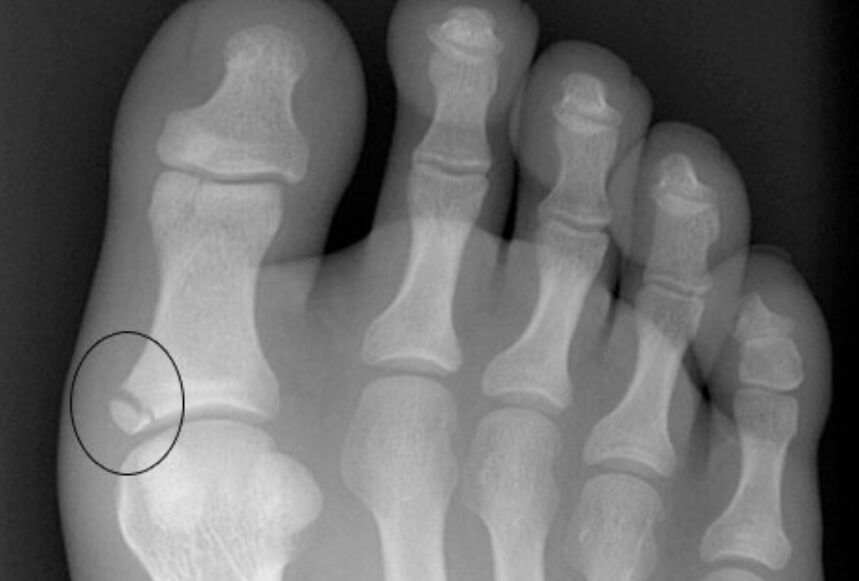 Broken Toe On X-ray