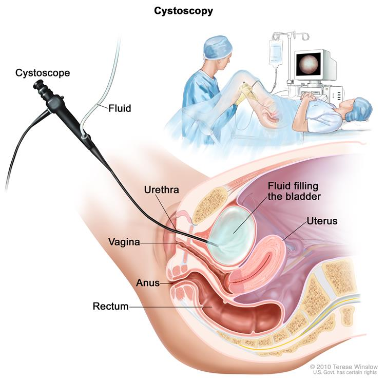 Cystoscopy For Female Reproductive System